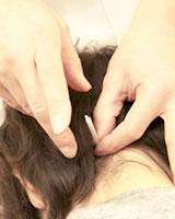 吹田市鍼灸整骨院縁の鍼灸風景